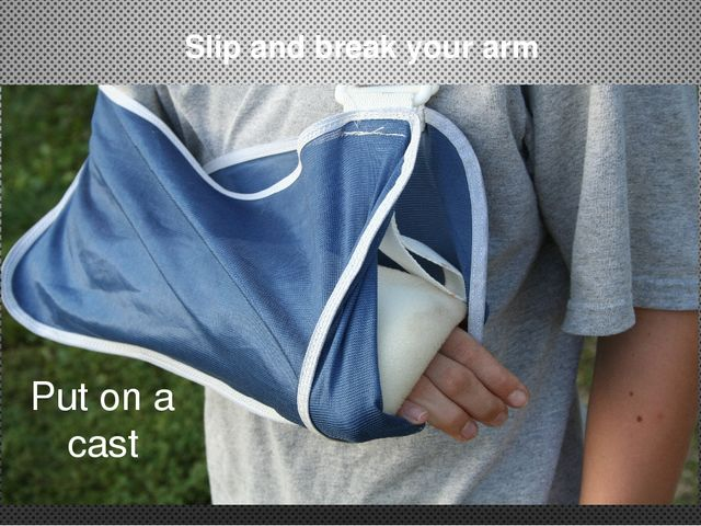 Slip and break your arm Put on a cast