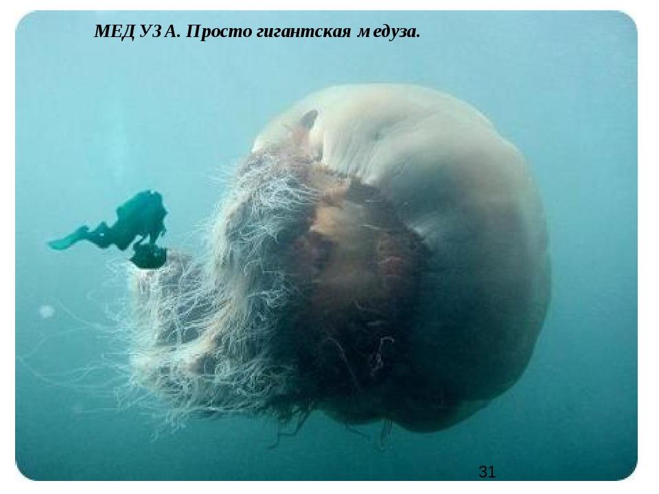 МЕДУЗА. Просто гигантская медуза.