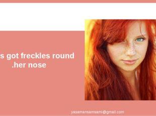She's got freckles round her nose. yasamansamsami@gmail.com