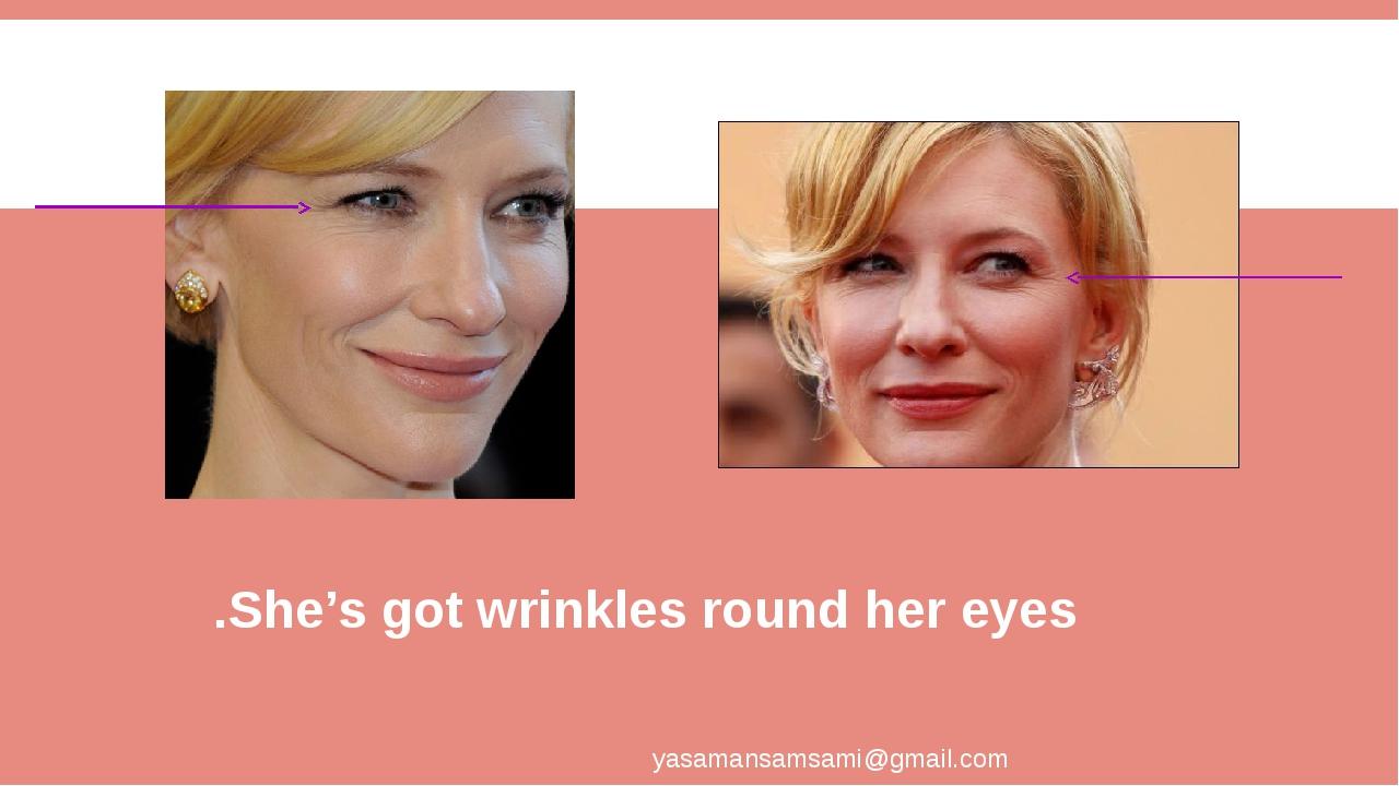 She's got wrinkles round her eyes. yasamansamsami@gmail.com