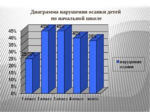 Диаграмма нарушения осанки детей по начальной школе