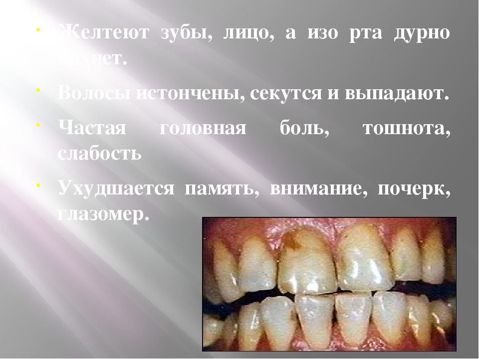 Желтеют зубы, лицо, а изо рта дурно пахнет. Волосы истончены, секутся и выпа...