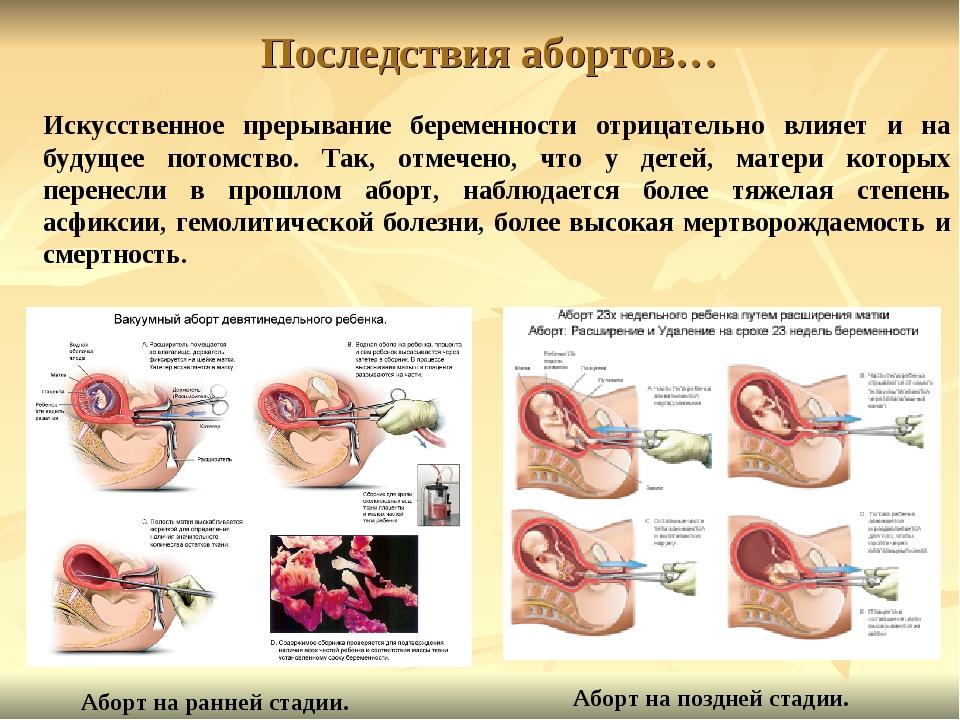 Последствия абортов… Искусственное прерывание беременности отрицательно влияе...