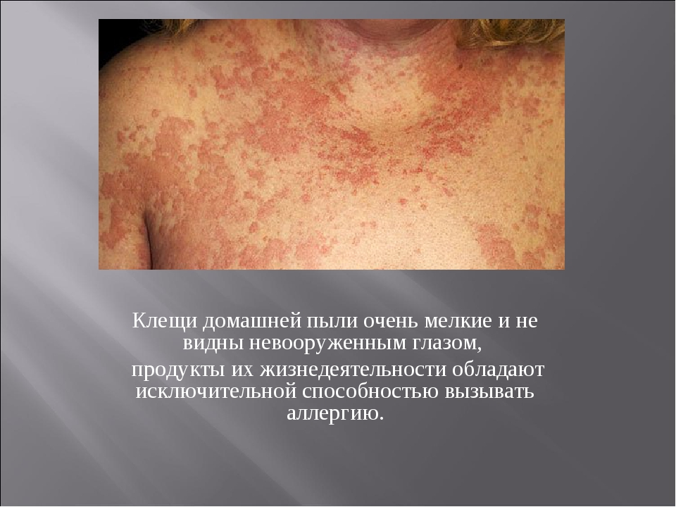Клещи домашней пыли очень мелкие и не видны невооруженным глазом, продукты их...