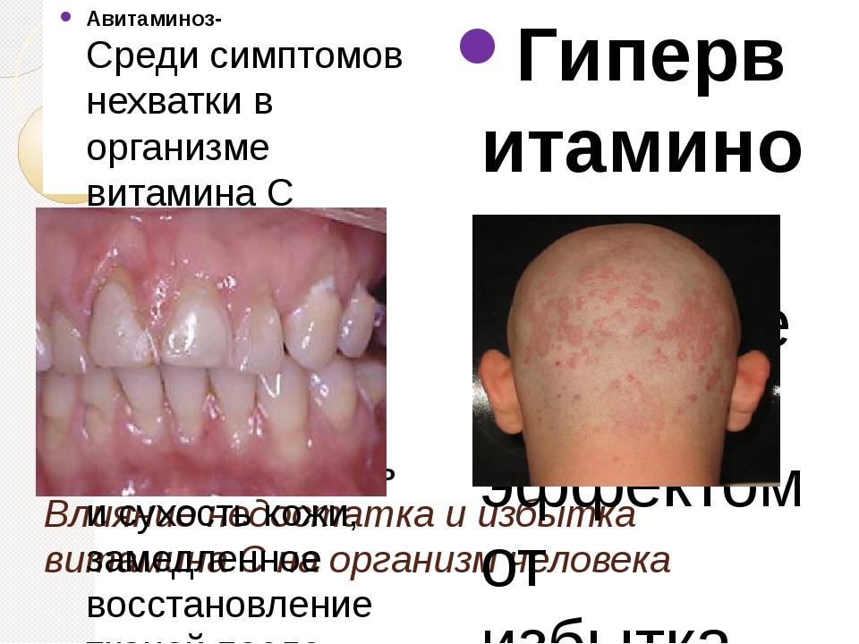 Влияние недостатка и избытка витамина С на организм человека Авитаминоз- Сред...