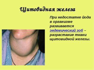 Щитовидная железа При недостатке йода в организме развивается эндемический зо