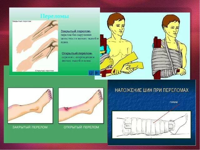 Словарь Ушиб - это травмирование мягких тканей тела (кожи, жировой прослойки,...