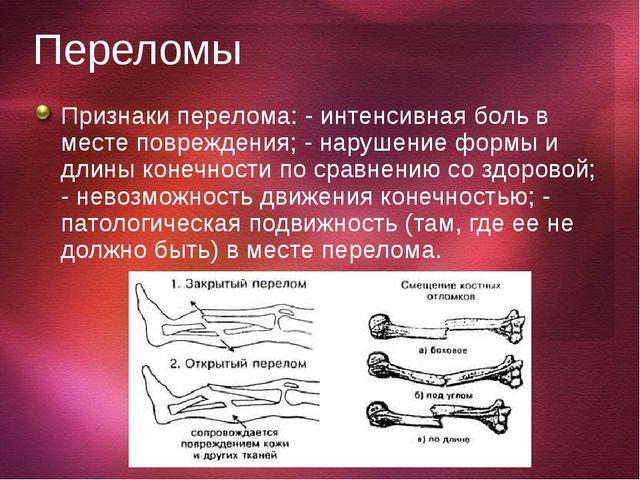 ПП при переломах костей должна включать остановку кровотечения, иммобилизацию...