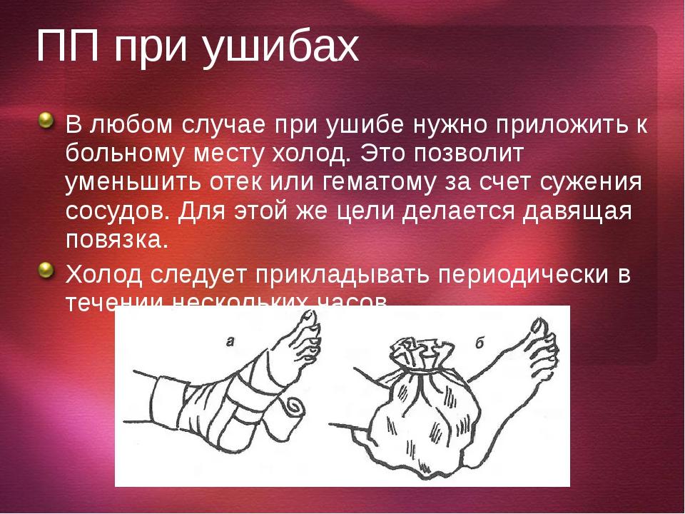 Вывихи Он может сопровождаться сдавливанием и разрывом кровеносных сосудов. П...