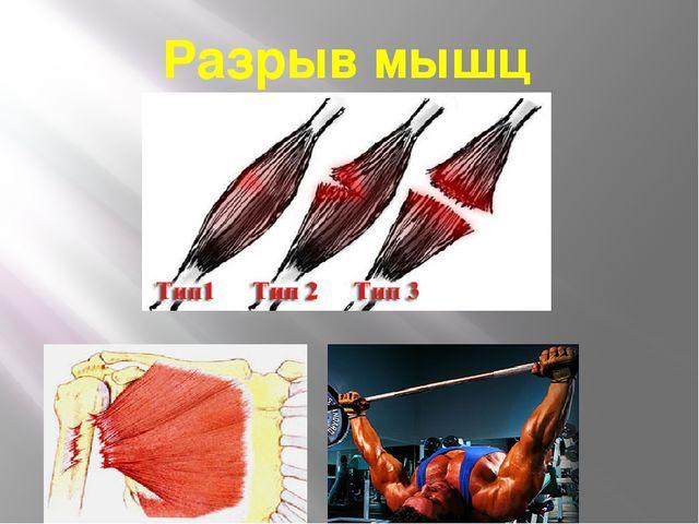 Разрыв мышц
