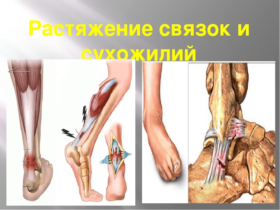 Растяжение связок и сухожилий