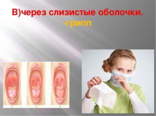 В)через слизистые оболочки. -грипп