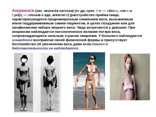 Анорекси́я (лат. anorexia nervosa) (от др.-греч. ἀν- — «без-», «не-» и ὄρεξις...