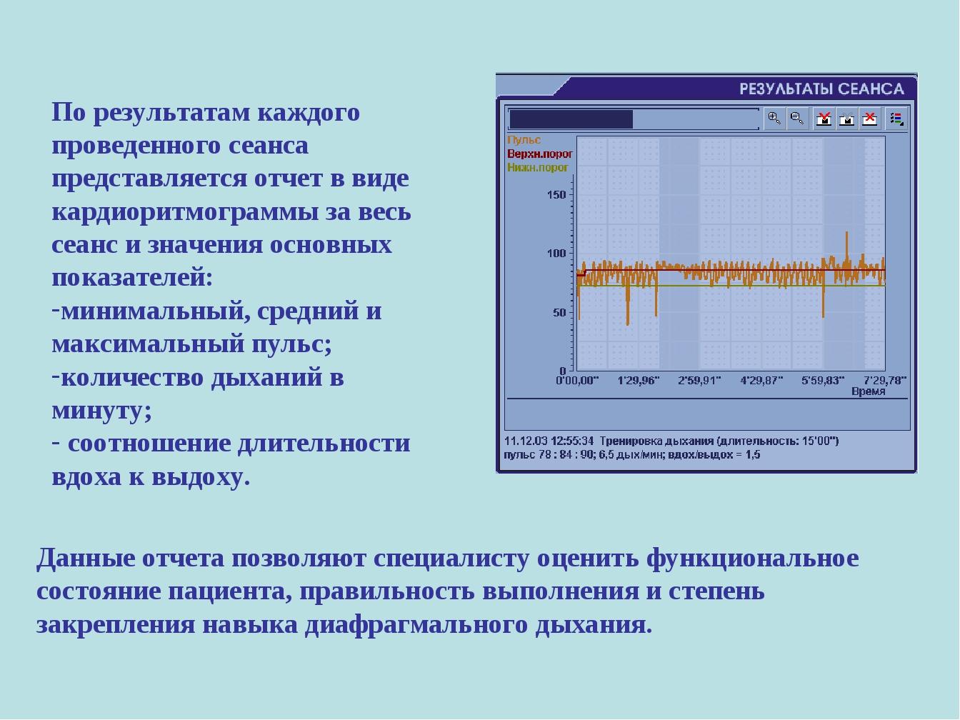 По результатам каждого проведенного сеанса представляется отчет в виде кардио...