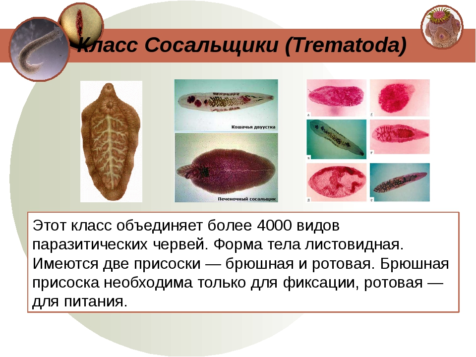 Этот класс объединяет более 4000 видов паразитических червей. Форма тела лист...
