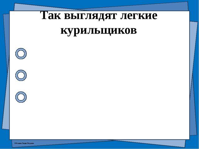 Так выглядят легкие курильщиков © Фокина Лидия Петровна