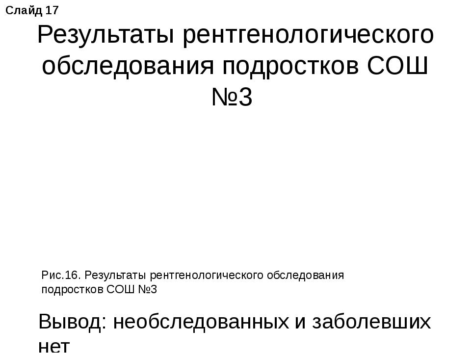 Результаты рентгенологического обследования подростков СОШ №3 Рис.16. Результ...