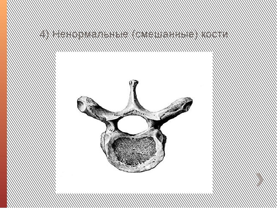 4) Ненормальные (смешанные) кости