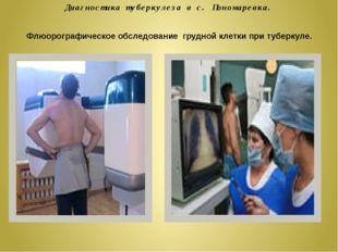 Диагностика туберкулеза в с. Пономаревка. Флюорографическое обследование груд