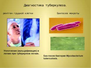 рентген грудной клетки Диагностика туберкулеза. Уплотнение (кальцификация) в