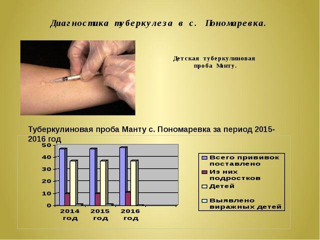 Диагностика туберкулеза в с. Пономаревка. Детская туберкулиновая проба Манту....