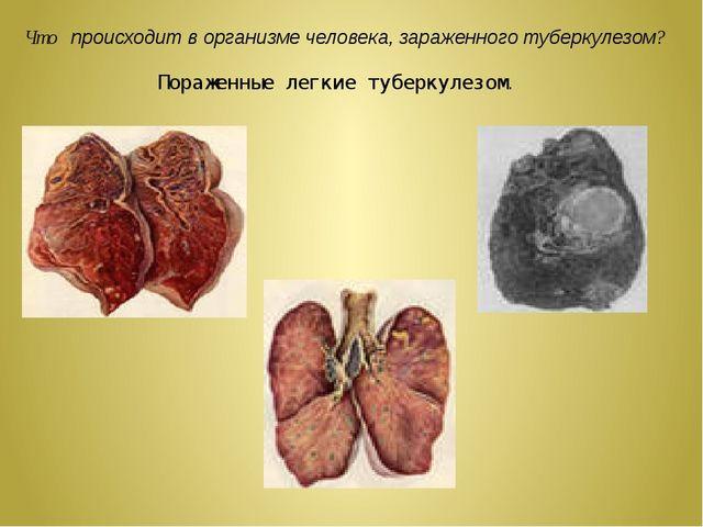 Что происходит в организме человека, зараженного туберкулезом? Пораженные лег...