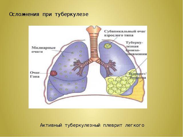 Осложнения при туберкулезе Активный туберкулезный плеврит легкого