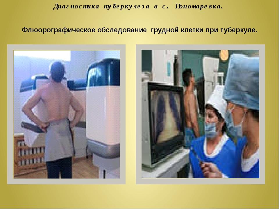 Диагностика туберкулеза в с. Пономаревка. Флюорографическое обследование груд...