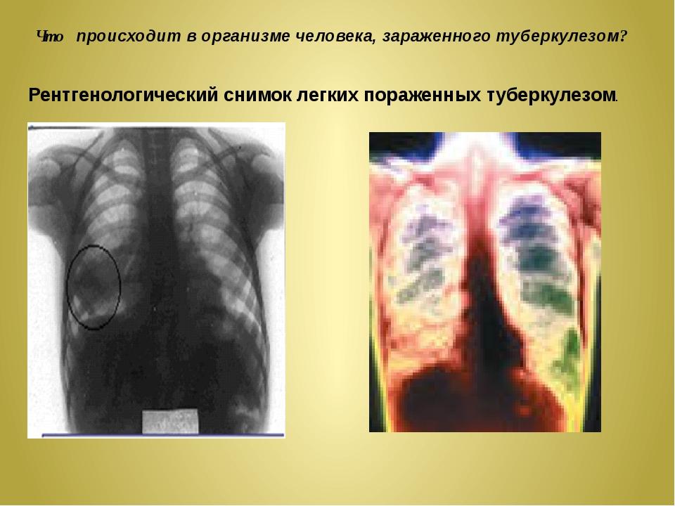 Что происходит в организме человека, зараженного туберкулезом? Рентгенологиче...
