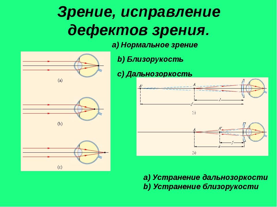 Зрение, исправление дефектов зрения. a) Нормальное зрение b) Близорукость с)...