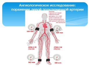 Ангиологическое исследование: поражение левой подключичной артерии
