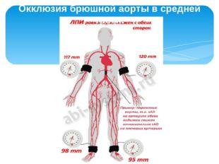 Окклюзия брюшной аорты в средней трети.