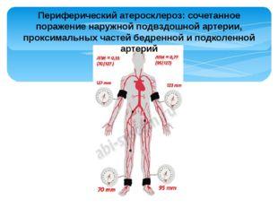 Периферический атеросклероз: сочетанное поражение наружной подвздошной артери
