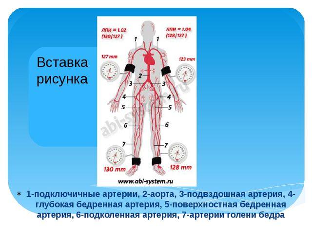 1-подключичные артерии, 2-аорта, 3-подвздошная артерия, 4-глубокая бедренная...