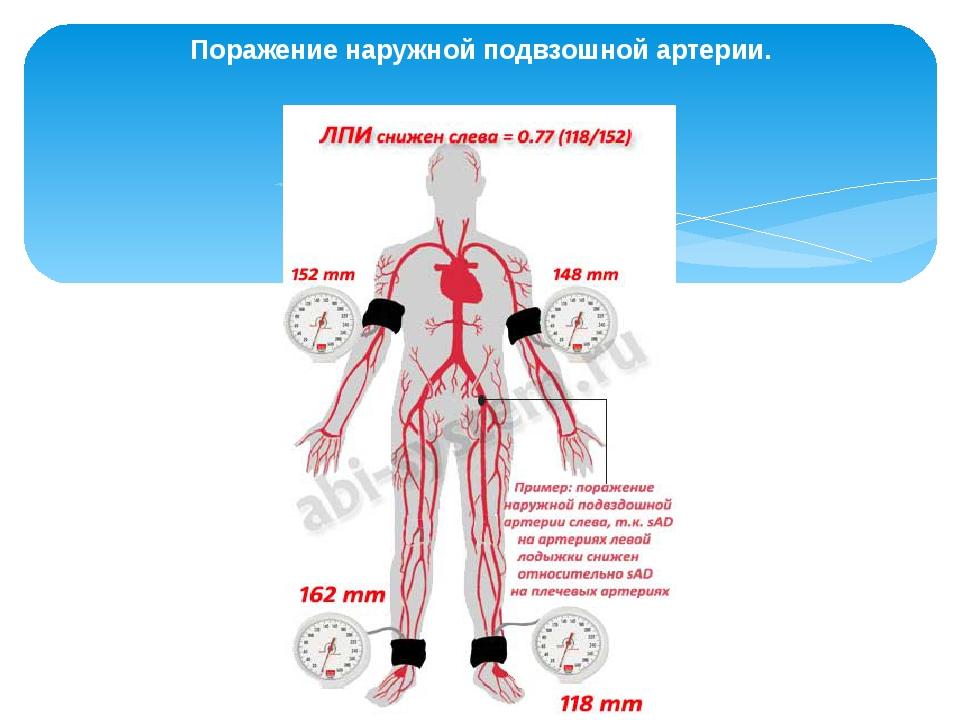 Поражение наружной подвзошной артерии.