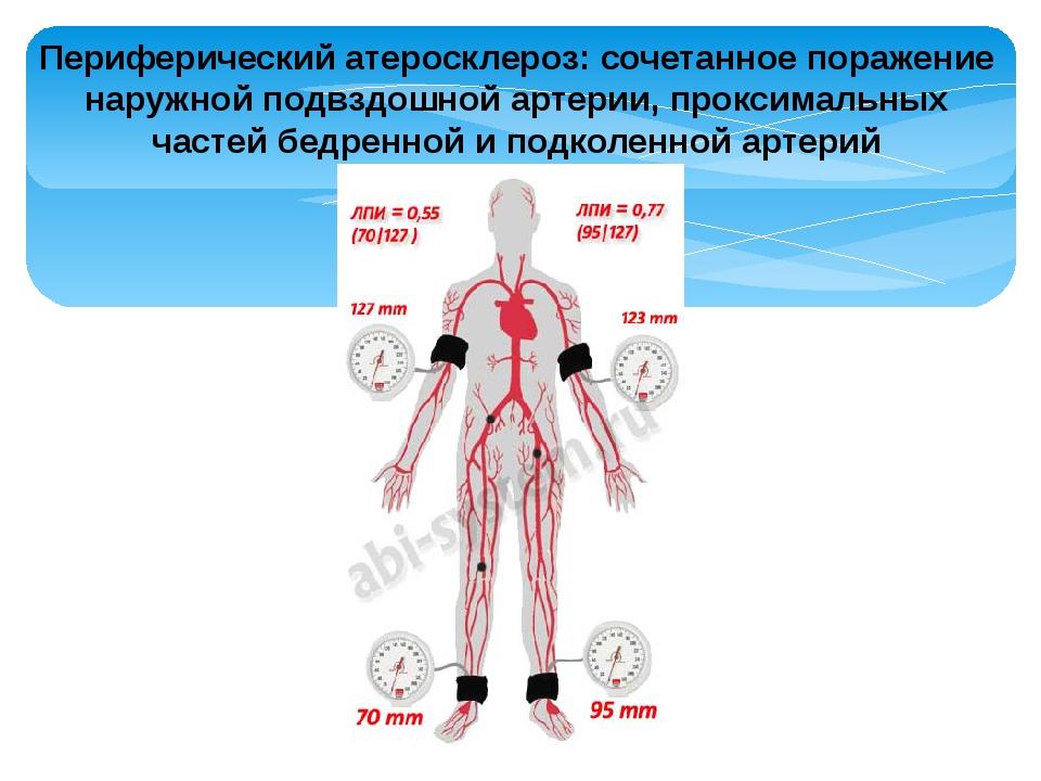 Периферический атеросклероз: сочетанное поражение наружной подвздошной артери...