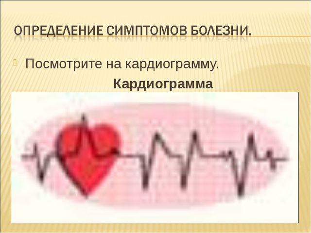 Посмотрите на кардиограмму. Кардиограмма