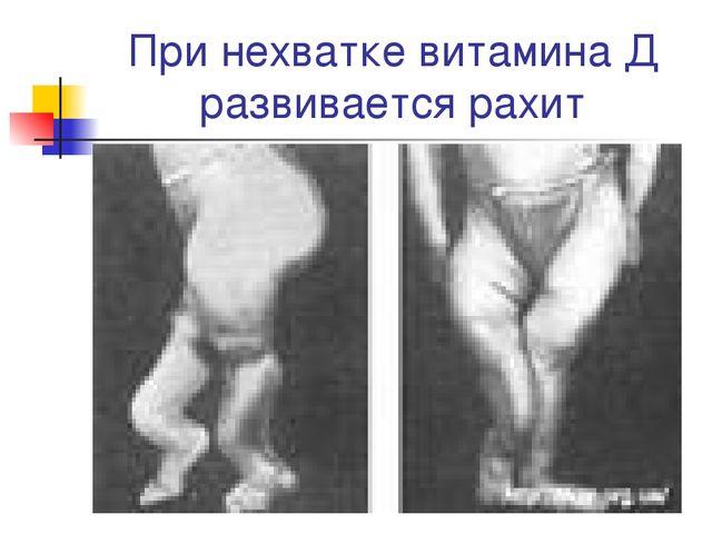 При нехватке витамина Д развивается рахит