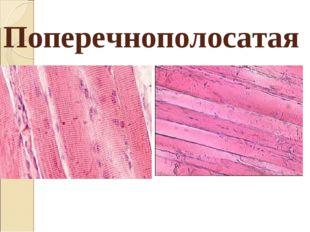 Поперечнополосатая