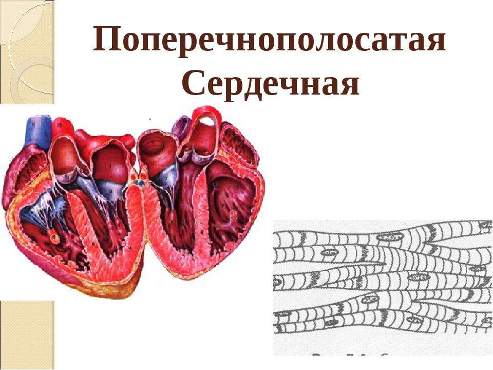 Поперечнополосатая Сердечная