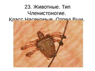 23. Животные. Тип Членистоногие. Класс Насекомые. Отряд Вши. Вошь лобковая