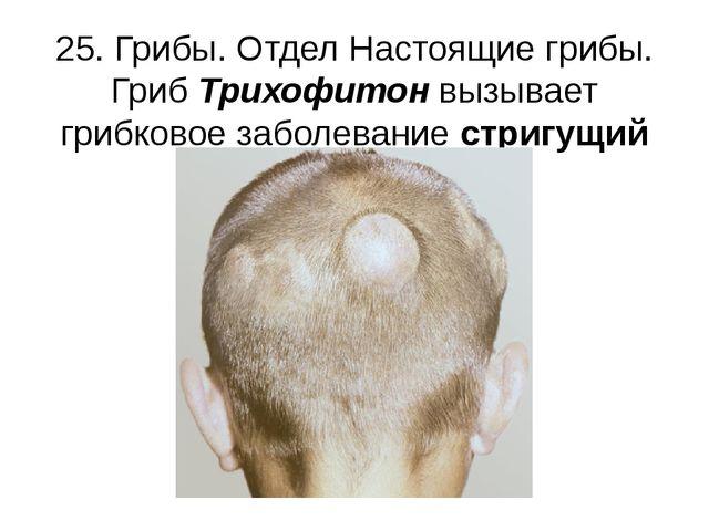 25. Грибы. Отдел Настоящие грибы. Гриб Трихофитон вызывает грибковое заболева...