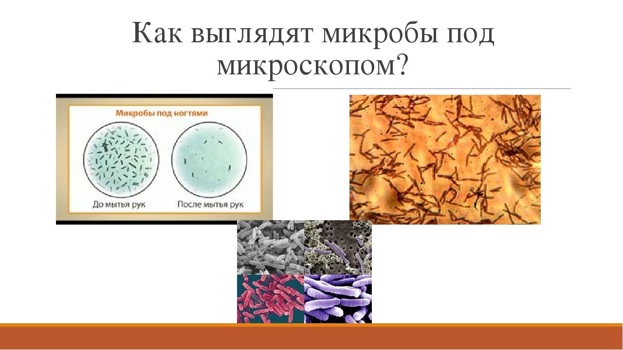 Как выглядят микробы под микроскопом?