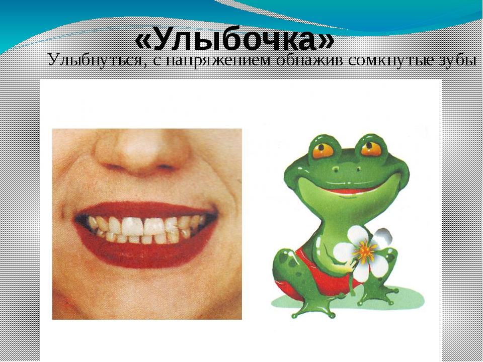 Улыбнуться, с напряжением обнажив сомкнутые зубы «Улыбочка»