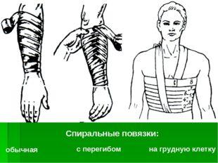 Спиральные повязки: обычная с перегибом на грудную клетку