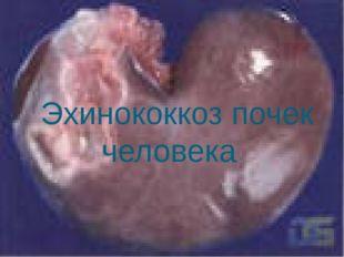 Эхинококкоз почек человека