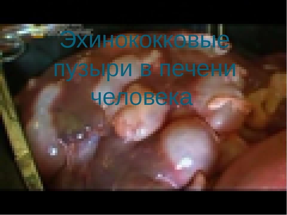 Эхинококковые пузыри в печени человека