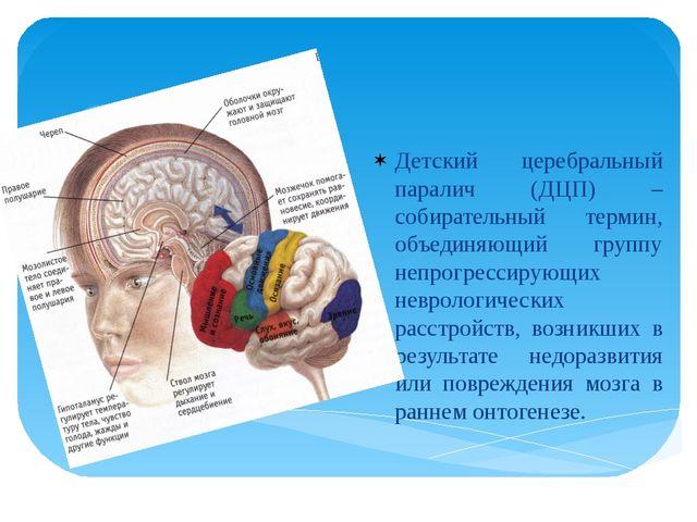Детский церебральный паралич (ДЦП) – собирательный термин, объединяющий групп...