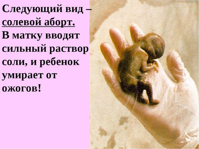 Следующий вид – солевой аборт. В матку вводят сильный раствор соли, и ребенок...