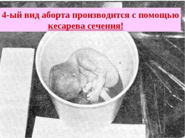 4-ый вид аборта производится с помощью кесарева сечения!